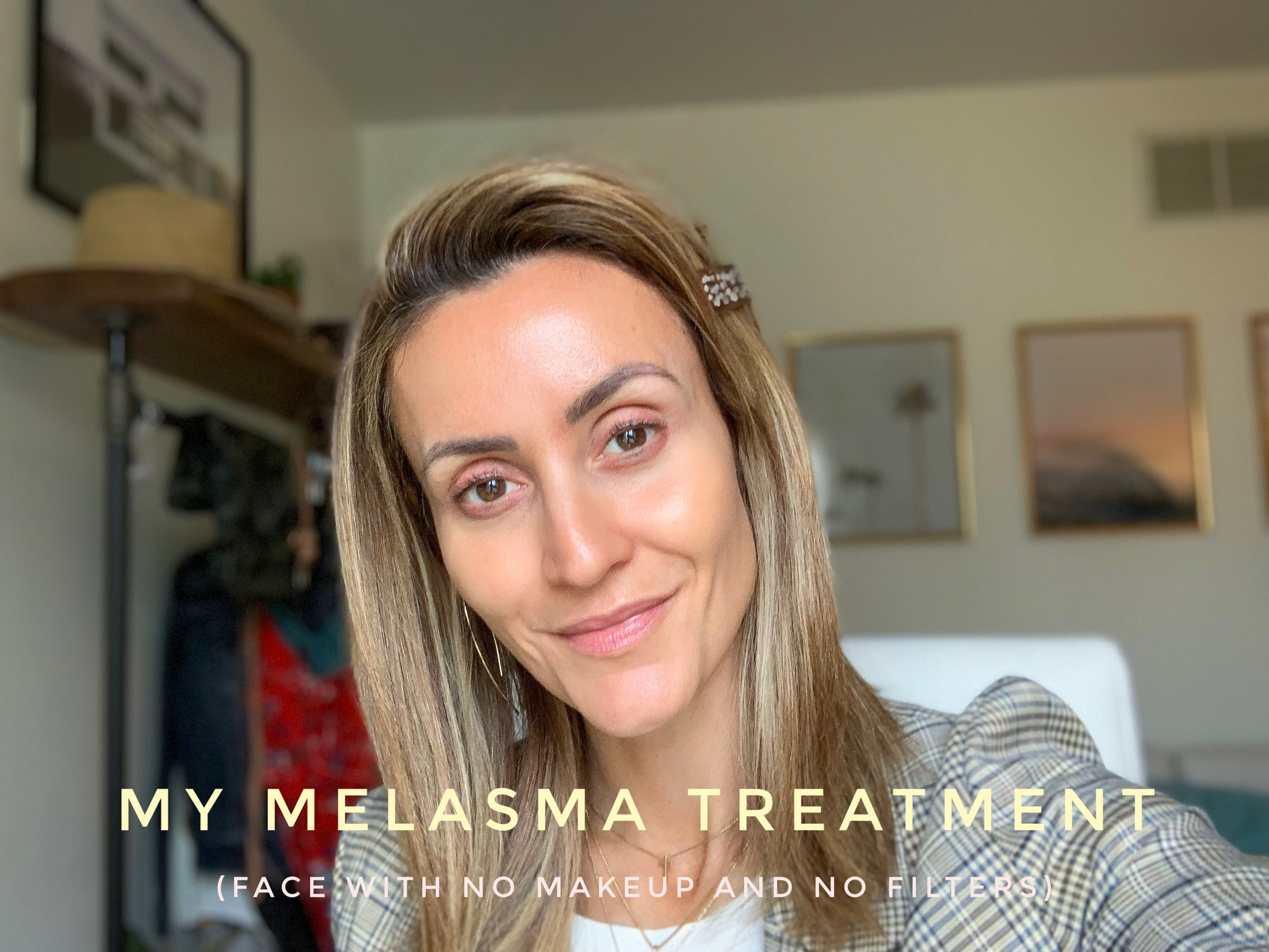 Karina Style Diaires | Melasma Treatment